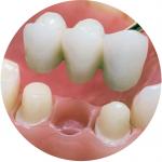 Мостовидный протез на зубы