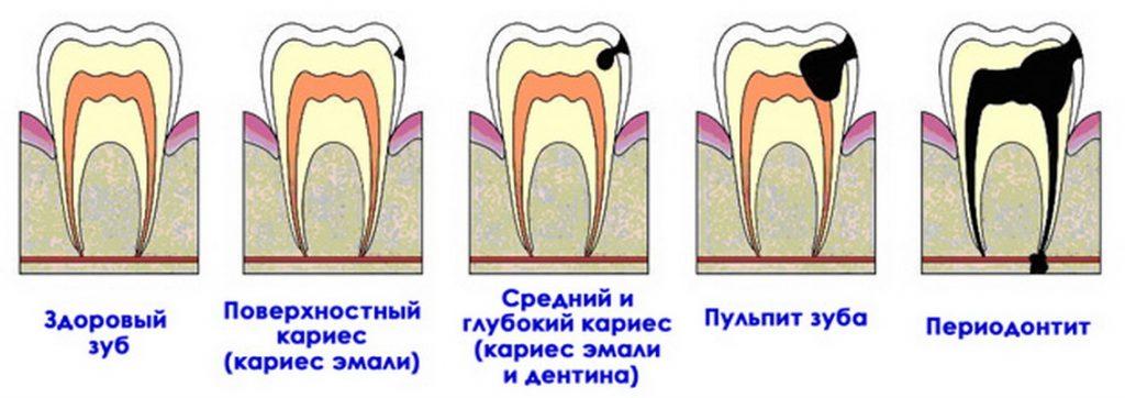 что помогает от запаха изо рта