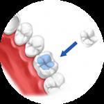 Вкладки на зубы