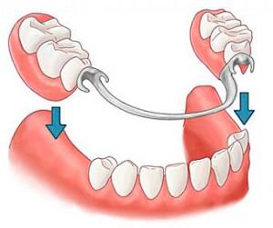 Брюгельные зубные протезы