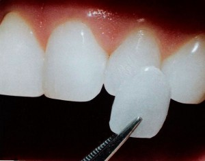 dentist-veneers