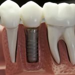 vidy-isskustvennyh-zubov