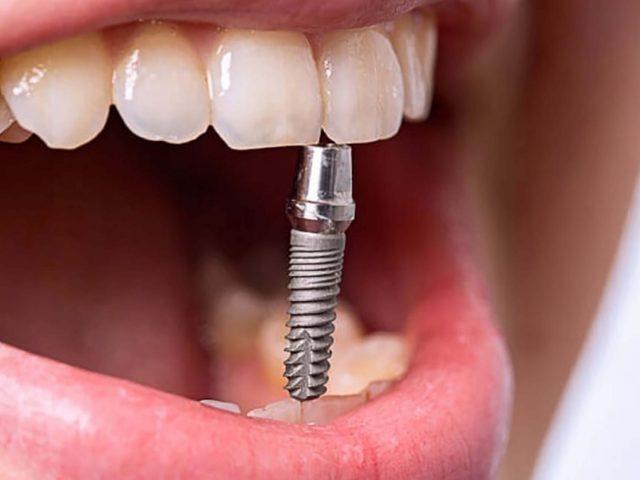 bazalnaya-implantacia-novosti-min