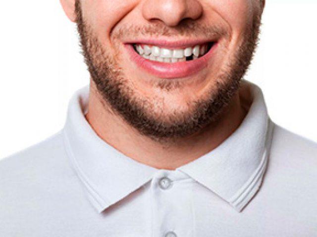 chem-grozit-otsutstvie-zuba-min