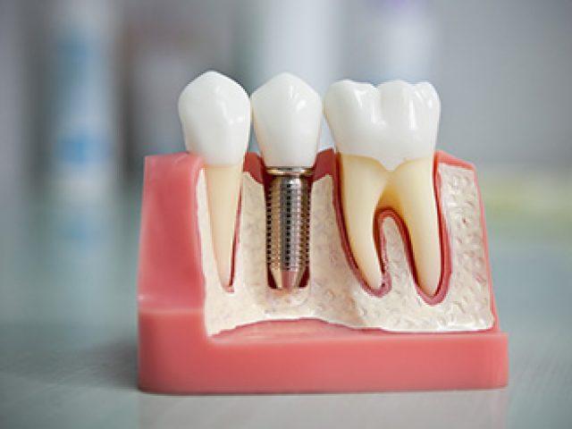 implantacia-zubov-min