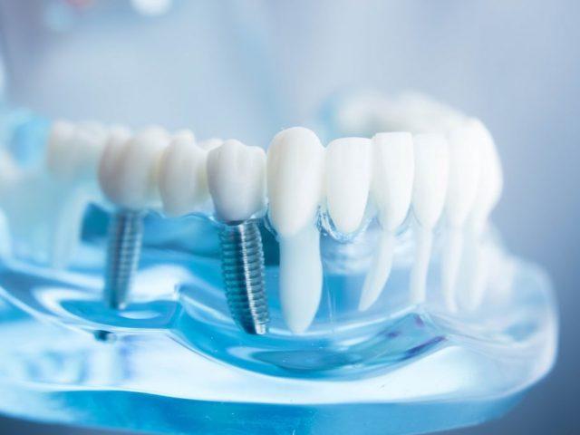 implantacia-zubov-novosti