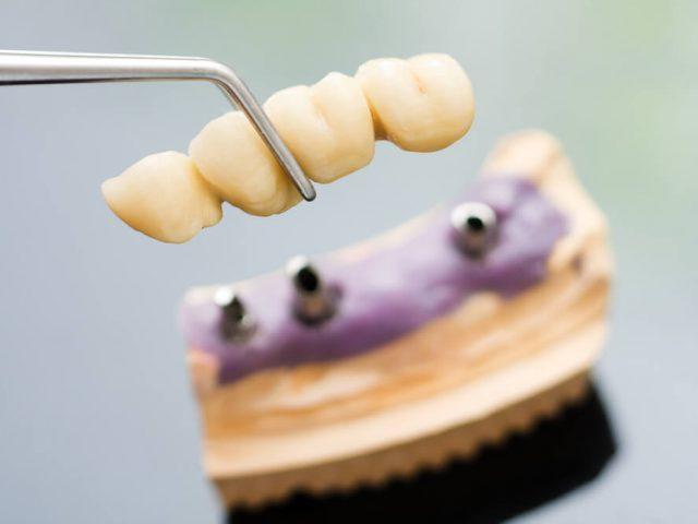 nesiomnoe-protezirovanie-zubov-min (1)